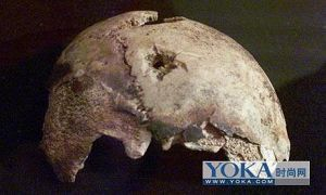 希特勒的頭蓋骨,上有自殺時的手槍彈孔(網絡圖片)